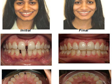 Orthodontics in Dentist in NYC cosmeticdentistbrooklyn.com Advanced Dental Care Advanced Dental Care of NYC 718-624-1970